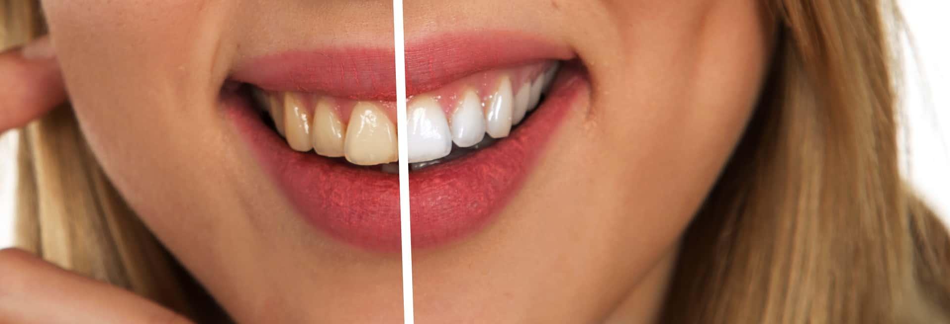 Diş Beyazlatma öncesi