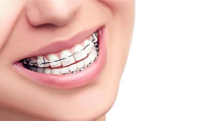 Diş teli takmadan düzgün dişlere sahip olabilirsiniz