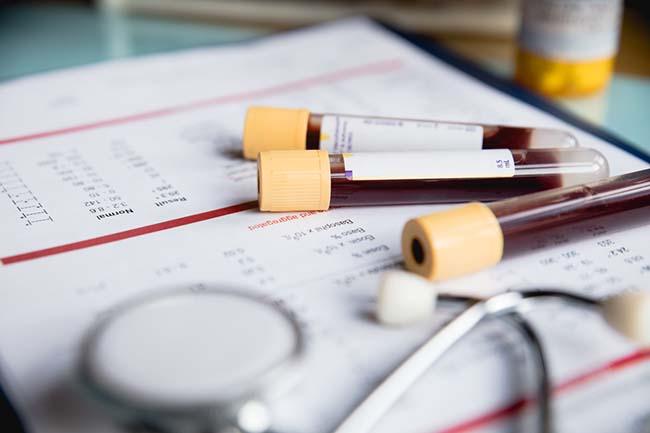 Kan vermek hayat kalitesini yükseltir